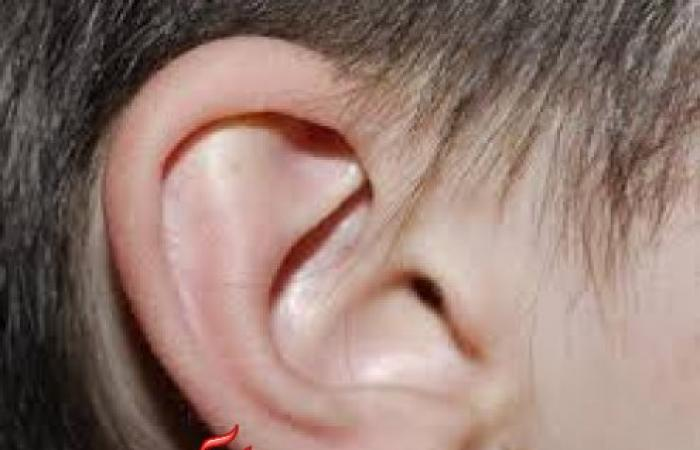 تعرف على دراسة حديثة تؤكد أن نقص الحديد يؤدي إلى فقدان السمع