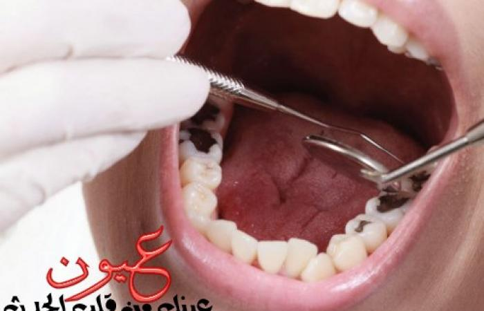 علاج تسوس الأسنان فى المراحل المبكرة والمتقدمة