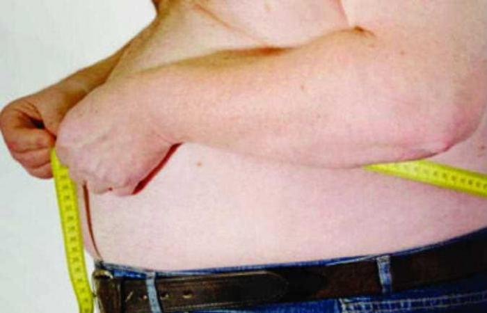 استشاري: جراحات السمنة تُخلص المريض من المضاعفات الخطيرة للسكر