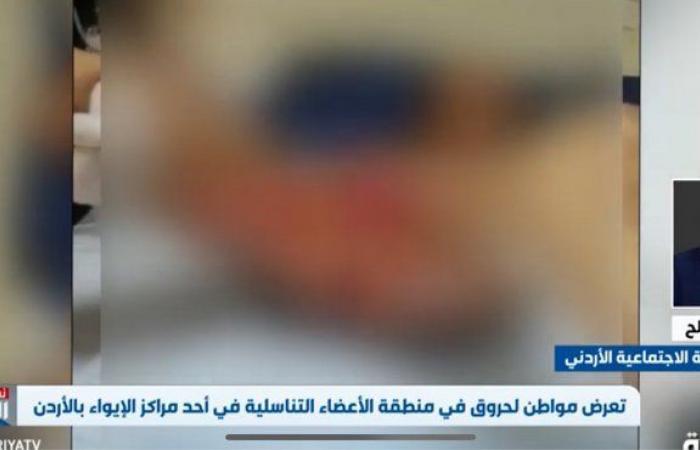 بالفيديو.. مواطن يتعرض لحروق بالأعضاء التناسلية بمركز إيواء بالأردن