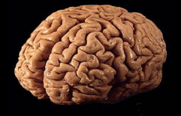 """فيتامين """"ب"""" يمنع انكماش خلايا المخ ويقى من الزهايمر"""