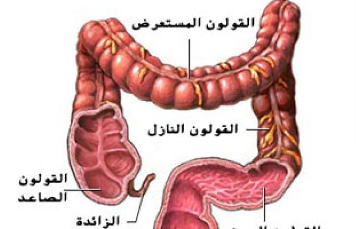 عقار جديد يظهر خواص رائعة فى علاج سرطان القولون