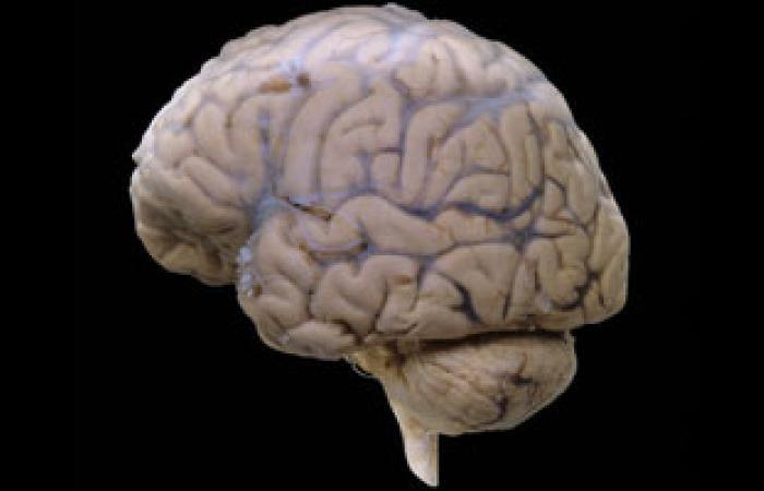دراسة: صغر حجم المخ سبب الصداع النصفى المتكرر