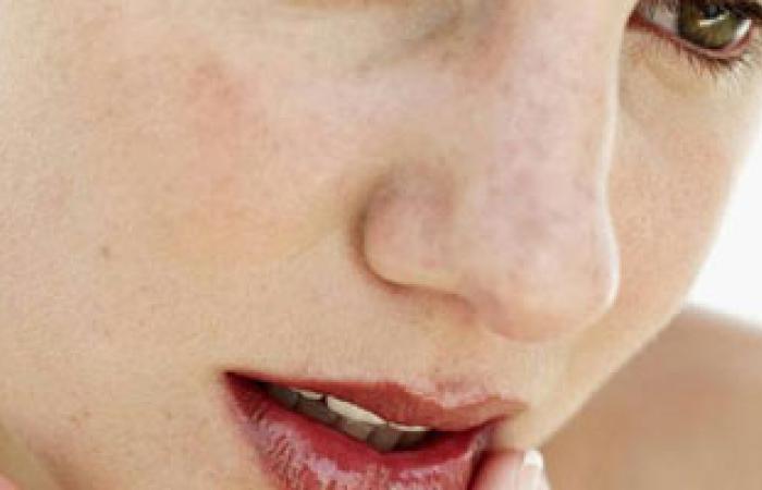 هل قشور البشرة البيضاء من علامات مرض الصدفية؟