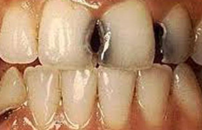 دراسة: تسوس الأسنان يصيب 35% من سكان العالم