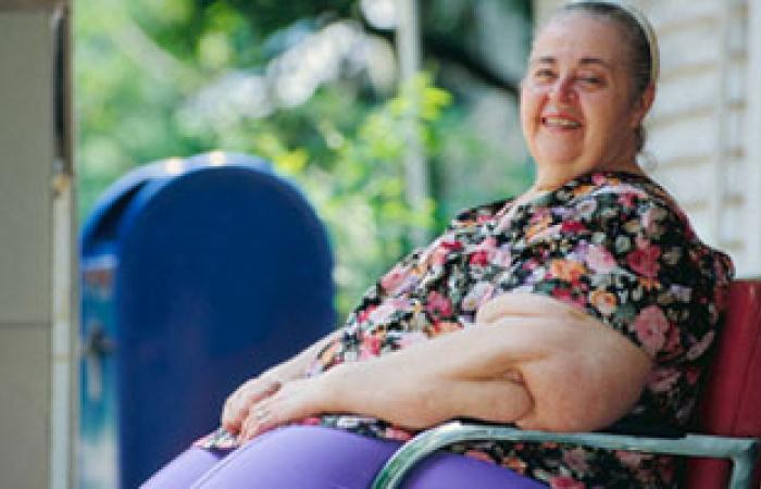 تكميم المعدة لإنقاص الوزن يساعد مرضى السكر والضغط والقلب