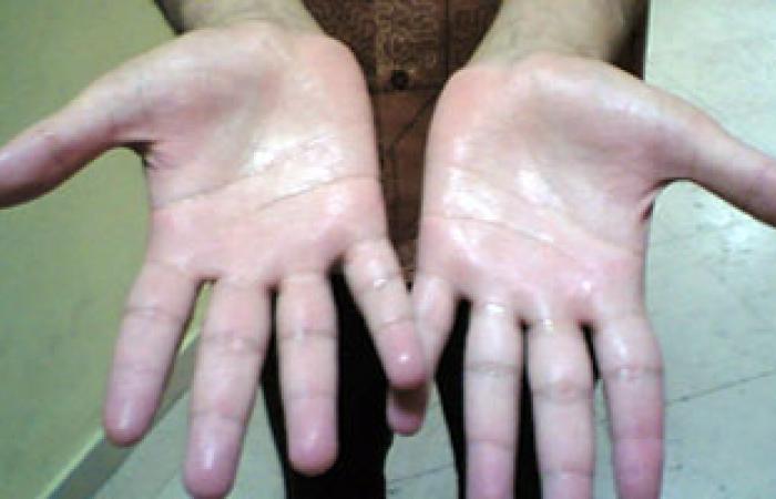 ما اختناق عصب اليد ولماذا يحدث؟