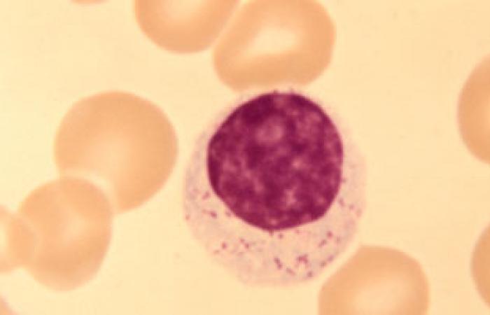 """""""المؤتمر الدولى""""يناقش أهم الأبحاث فى أمراض سيولة الدم والتجلط بأمستردام"""