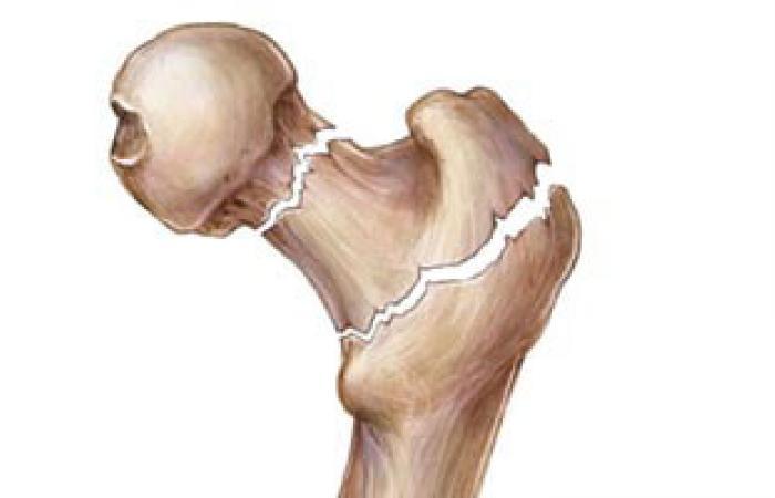 جمعية جراحة العظام المصرية تعقد مؤتمرها الدولى الثانى للإصابات والكسور