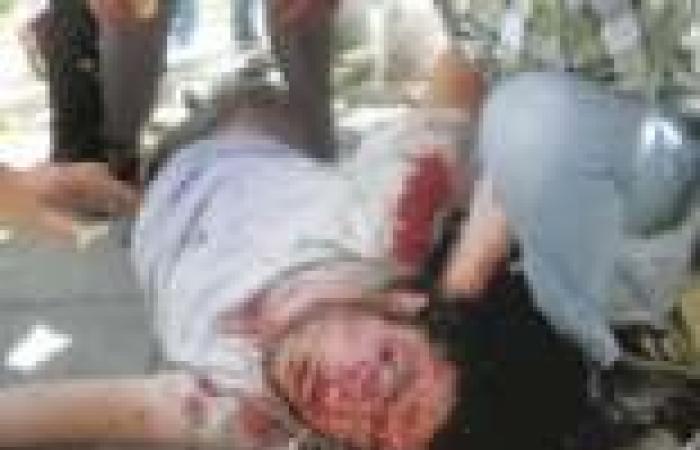 """عاجل  """"الصحة"""": إصابة 10 متظاهرين بجروح في اشتباكات بين """"الإخوان"""" ومتظاهرين بالإسكندرية"""