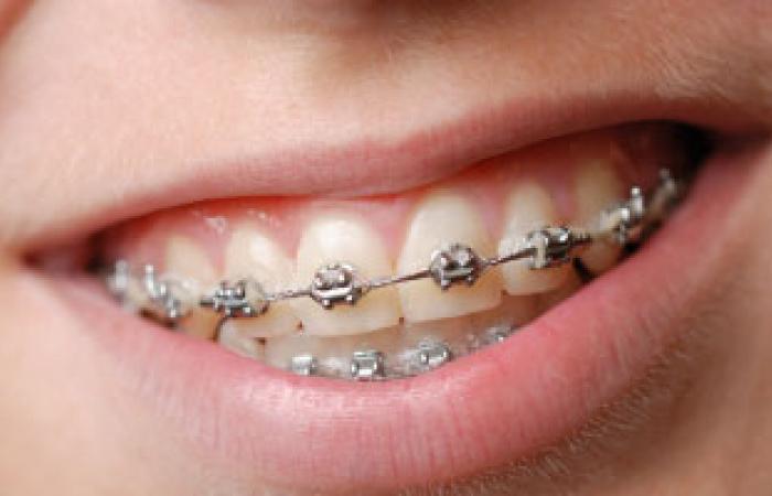 ديلى تليجراف: خلايا جذعية من البول البشرى لإعادة بناء الأسنان المفقودة