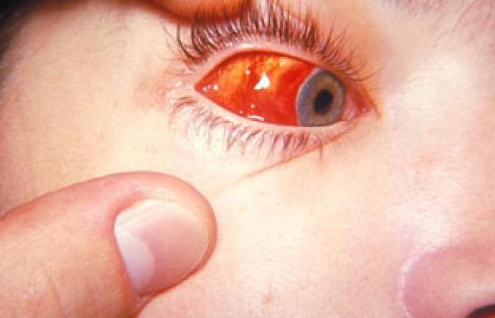 كيف يعالج كسل العين عند الأطفال؟