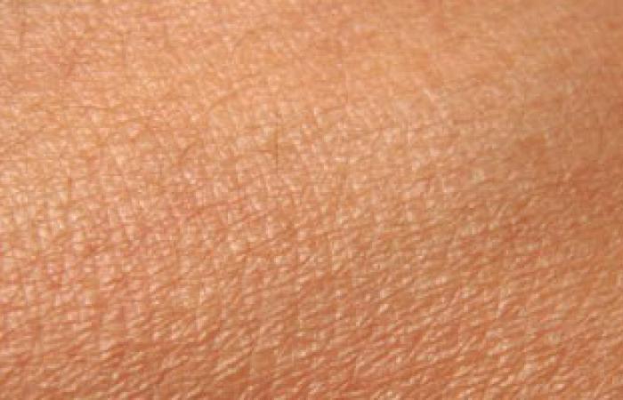 دراسة: الرجال أكثر عرضة للوفاة بسرطان الجلد بالمقارنة بالسيدات