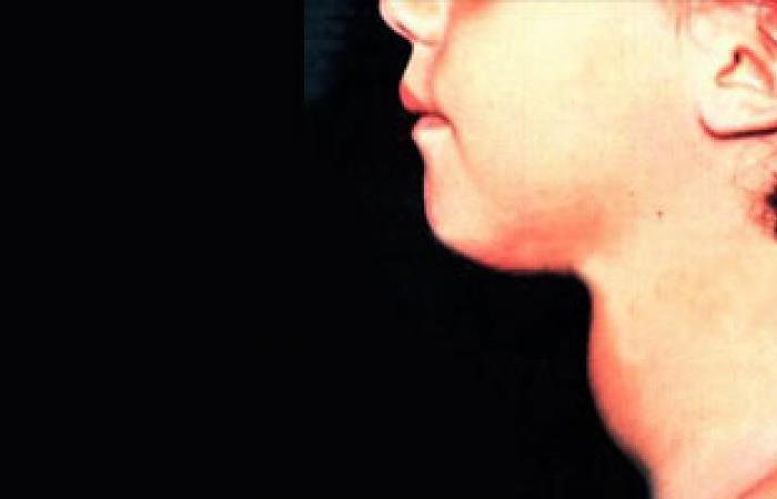 أستاذ الغدد الصماء: خلل المناعة سبب نشاط الغدة الدرقية