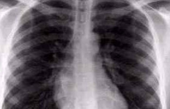 استخدام الموجات فوق الصوتية لكشف كسور العظام بدلا من الأشعة السينية