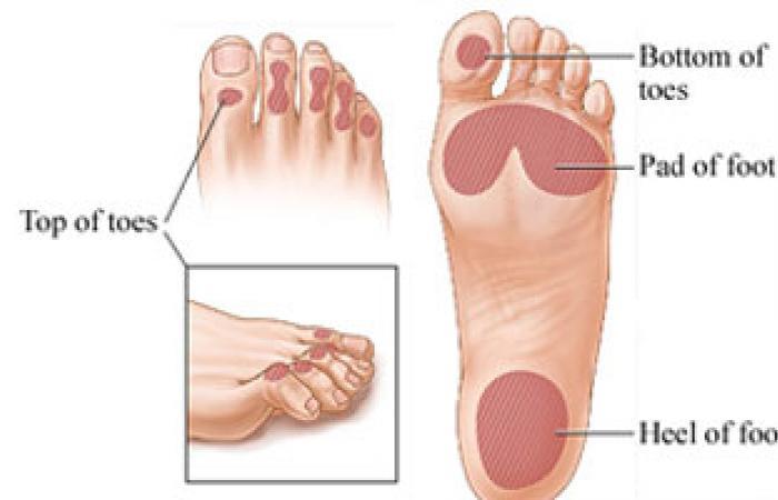 لبس شراب وحذاء مناسب يحمى من مرض القدم السكرى