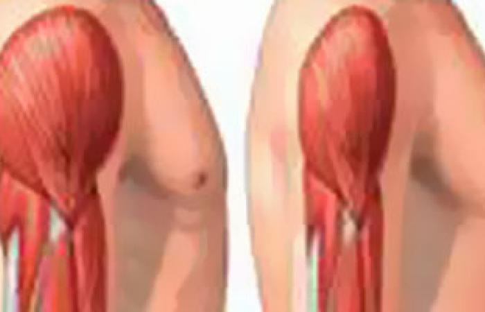اضطراب العضلات الهيكلية السبب الأول للأمراض المهنية فى فرنسا