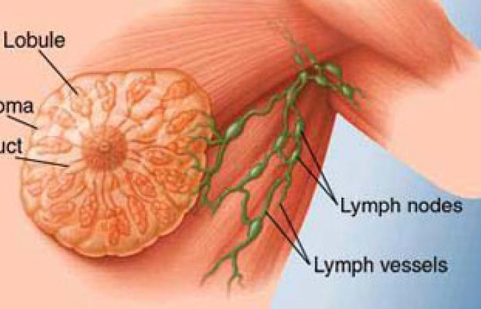 حمالات الصدر ليست لها علاقة بسرطان الثدى
