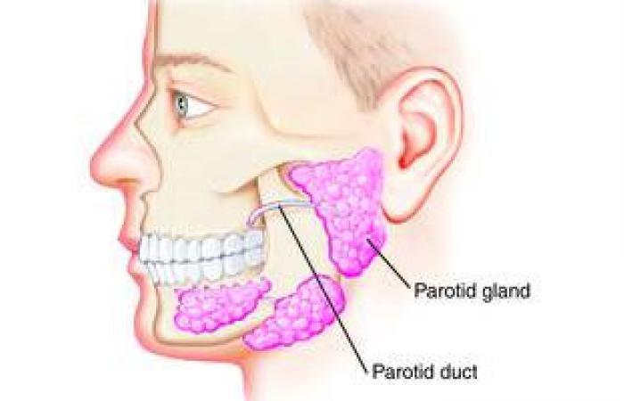 اعوجاج الفم وعدم إغلاق العين أعراض الإصابة بورم الغدة النكافية