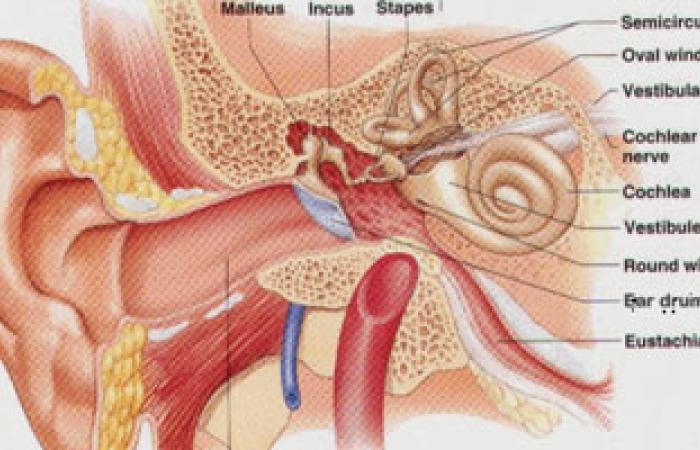 الجينات الوراثية أهم مسببات الصمم الناتج عن تكلس عظام الأذن الوسطى