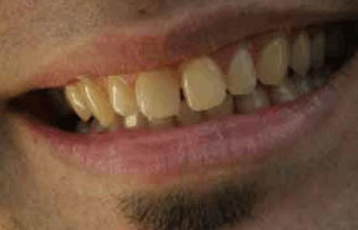 الجز على الأسنان يؤدى إلى تلفها وتآكلها