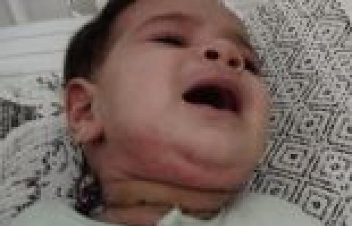 بالصور  استئصال ورم لطفلة عمرها شهر بالإسكندرية