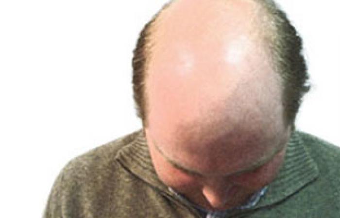 كيف يكافح شاب العشرين الصلع الوراثى وتساقط الشعر؟
