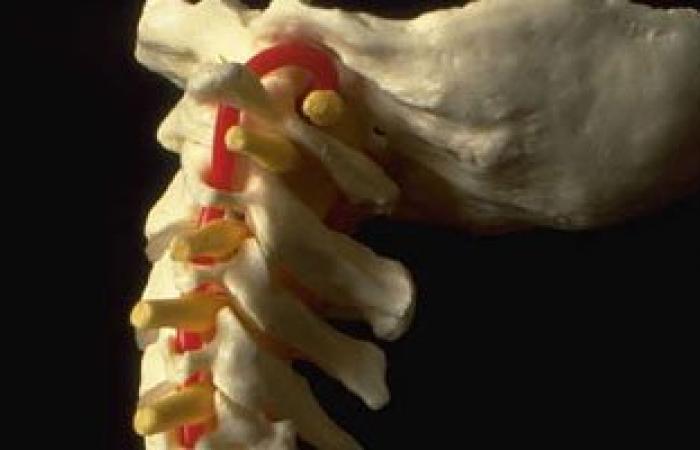 جراح مصرى بالنمسا يستبدال فقرات العمود الفقرى التالفة بأخرى من التيتانيوم