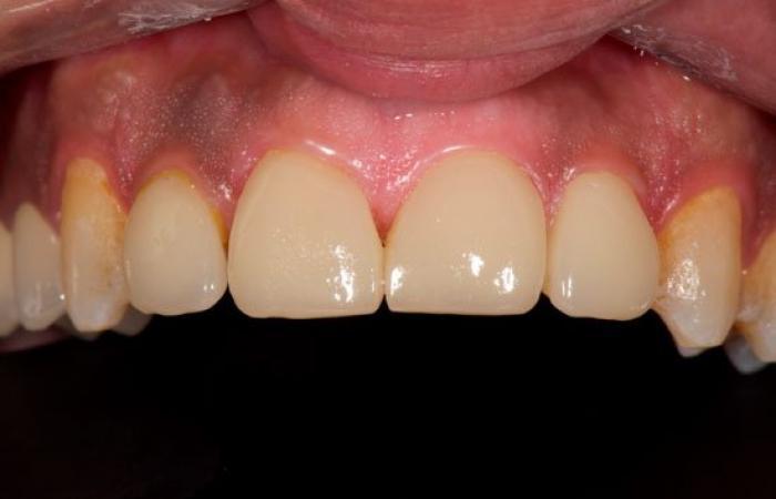 """تعرف عدسات """"الأسنان""""؟.. القشور الخزفية طريقة جديدة للابتسامة"""