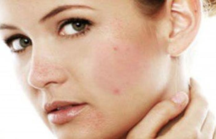 7 أسباب مرضية وراء ظهور حب الشباب أهمها مستحضرات التجميل المجهولة