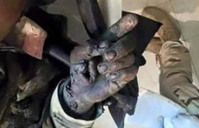 أحد شهداء الإرهاب يرفع إصبعه توحيداً لله لحظة استشهاده