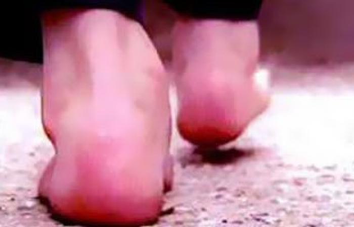 3 أضرار صحية لإهمال علاج الكعبين