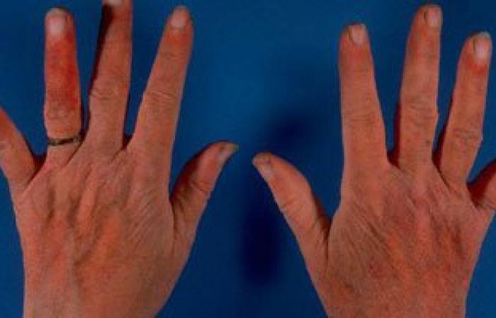 استعمال الإكسسوارات الرديئة يصيبك بالإكزيما والأمراض الجلدية