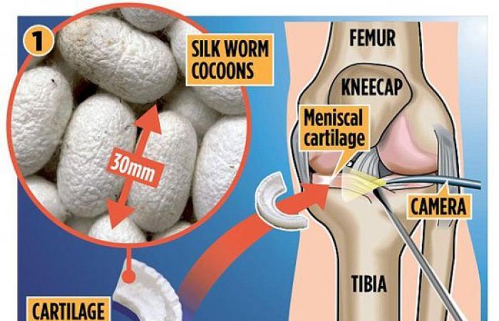 أحدث صيحة فى علاج التهاب مفصل الركبة باستخدام خيوط دودة القز