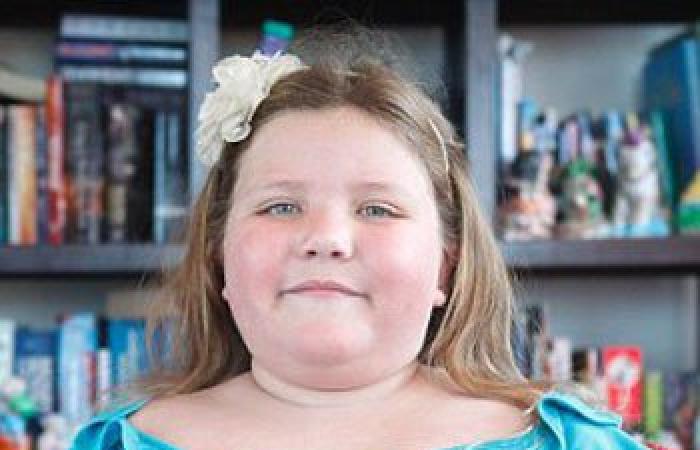 بالصور.. طفلة تصاب بمرض نادر يسبب زيادة وزنها 1 كجم أسبوعيًا