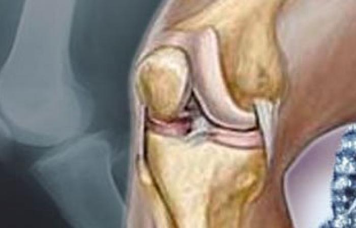 جراحة استبدال الركبة تحد من آلام المفاصل
