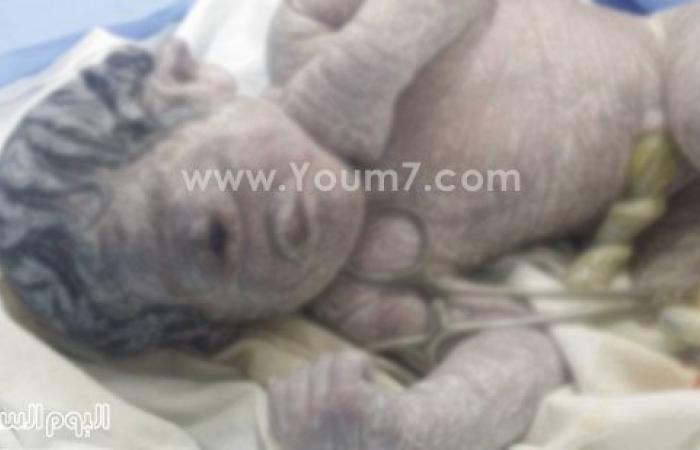 بالصور. ولادة نادرة لطفل بالسنبلاوين بعين واحدة