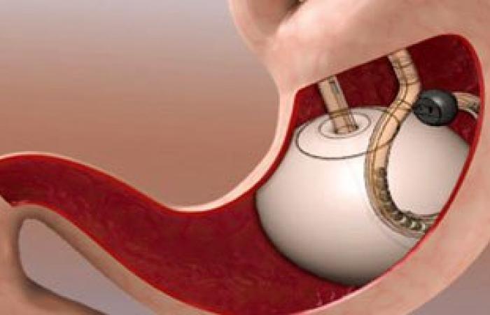 بعد نهاية مدة بالون المعدة.. وسائل تساعدك على خسارة وزنك الزائد