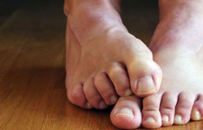 تعرف على أضرار الوقوف على القدم للأصحاء ومرضى الجلطات ونصائح للسلامة