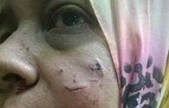 تداول صورة لتشويه بلطجية وجه طبيبة بمستشفى القاهرة الفاطمية