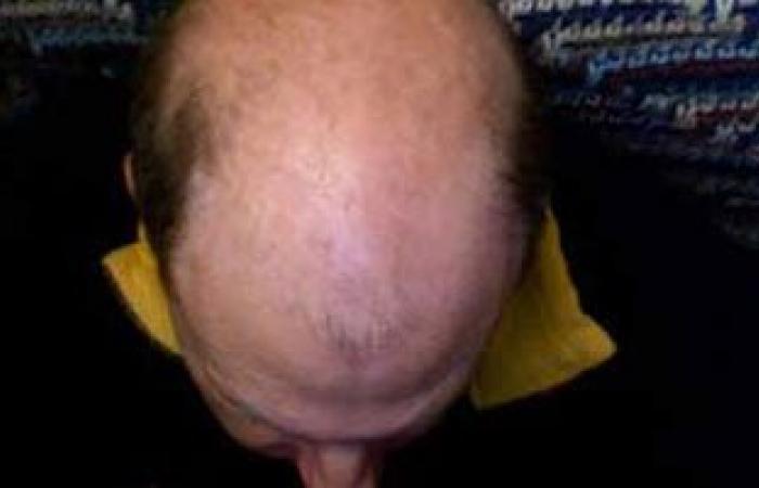 أسباب الإصابة بالصلع وفقدان الشعر