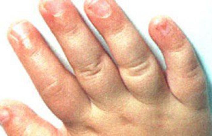 """""""رينود"""" مرض الشتاء يصيب أطرافك بالتورم والعلاج بعشبة """"الجنكة"""""""