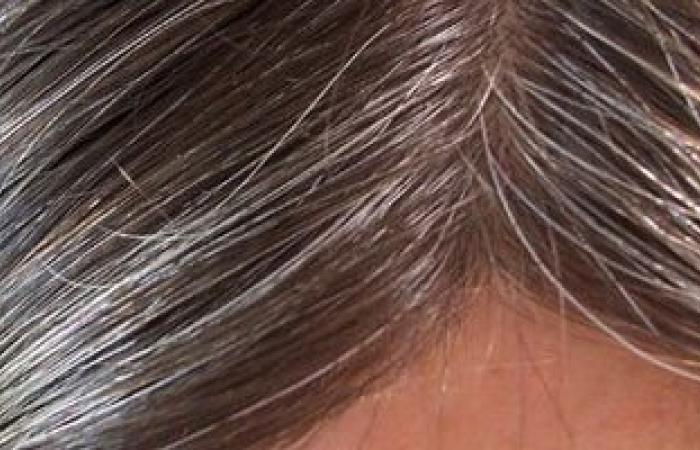 استشارى جلدية: اكتشاف الجين المسبب للشيب يبشر باختفاء الشعر الأبيض