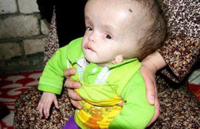 """الرئيس يستجيب لحالة الطفلة """"فاطمة"""" ويقررعلاجها بعد نشر اليوم السابع قصتها"""