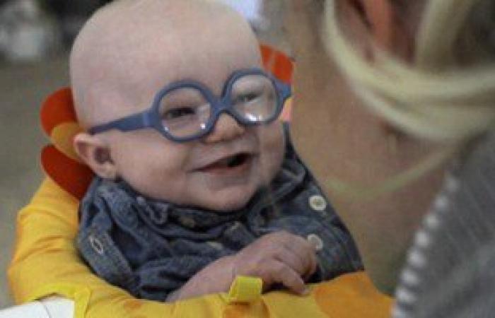 بالصور.. طفل 4 شهور يرى أمه لأول مرة بابتسامة خاطفة بسبب مرض نادر