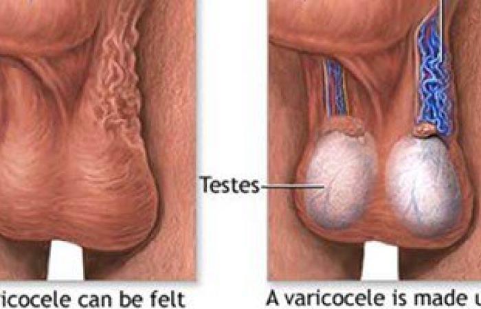 علاجات دوالى الخصية.. أبرزها المجهر الجراحى