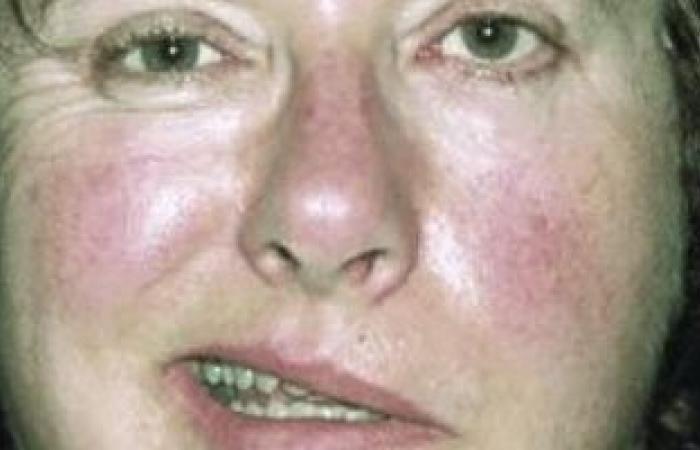 أعراض العصب السابع الملتهب.. ضعف عضلات الوجه والصداع