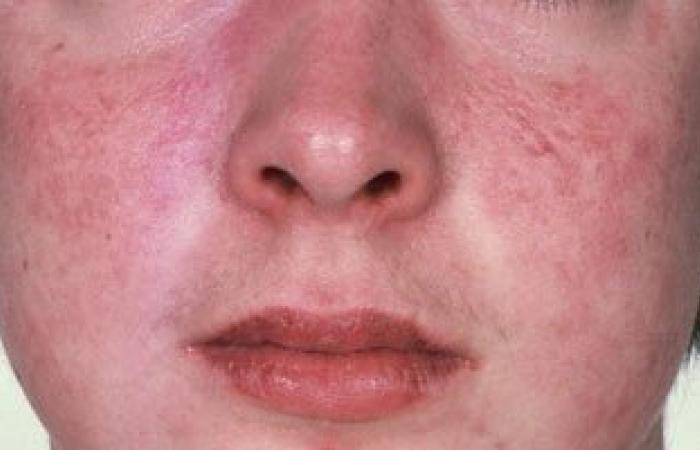 أعراض الذئبة الحمراء.. الطفح الجلدى وتساقط الشعر وآلام المفاصل