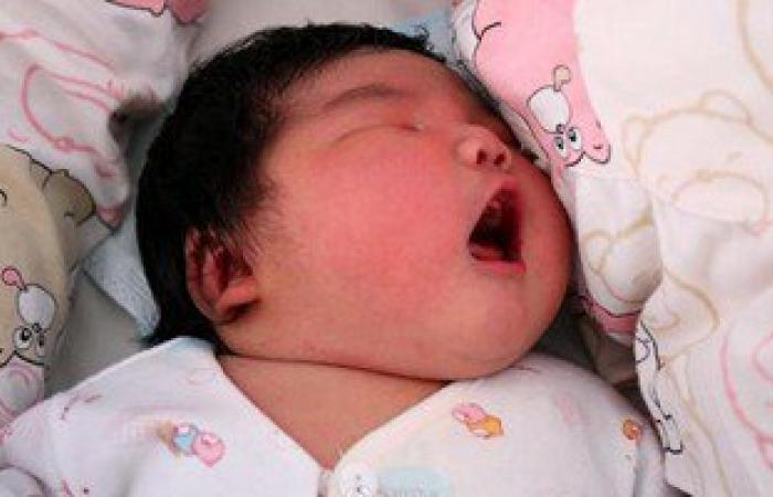 احمرار جسد الطفل بعد الولادة.. تعرفى على الأسباب