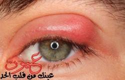 5 وصفات منزلية لعلاج التهابات العيون